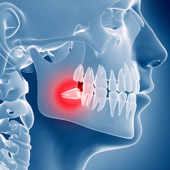 tmj treatments